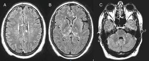 Lesiones de hiperseñal en FLAIR al nivel de los ganglios basales (B), la fosa posterior (C) y afectación del cuerpo calloso (A), que se considera patognomónica.
