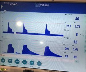 Curvas de presión y volumen en la paciente en ECMO VV y ventilación ultraprotectora. Con Vt de 199ml se alcanzan presiones pico de 59mbar.