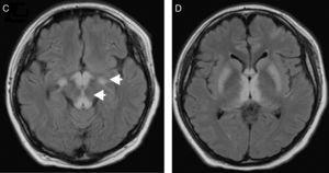 Progresión de lesiones a pedúnculos cerebrales y núcleos de la base.