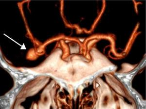 Angio-TC craneal. Lesión aneurismática dependiente de bifurcación de la arteria cerebral media derecha (punta de flecha).