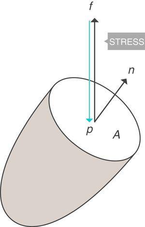 Stress=presión. Fuente: reproducida con permiso de Modesto-Alapont V, et al.5.