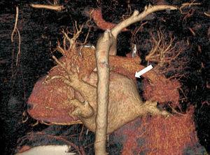 Reconstrucción de tomografía computarizada con contraste: colapso de la vena pulmonar superior derecha proximal a su entrada en aurícula izquierda (flecha blanca).