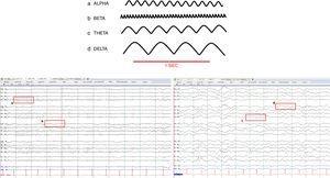Ondas cerebrales normales. a. Alfa (8-12Hz), b. Beta (13-30Hz), c. Zeta (4-7Hz), d. Delta (0,1-3Hz).