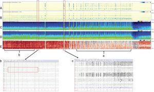 Cuatro horas de qEEG en un paciente de 56 años de edad con alteración del sensorio, fiebre y rigidez de nuca. El paciente fue diagnosticado con meningitis estreptocócica complicada con estatus epiléptico no-convulsivo. Múltiples convulsiones electrográficas fueron grabadas, originadas en el hemisferio derecho (evidenciado por la mayor amplitud en el hemisferio derecho con relación al hemisferio izquierdo. Paneles C y D) y (a) por el espectrograma de asimetría relativa (panel E) con mayor imagen roja (hemisferio derecho) que azul (hemisferio izquierdo). Además, (b) el espectrograma de asimetría relativa se observa de color rojo antes de la convulsión debido a la gran actividad interictal que se ve en el hemisferio derecho. Los paneles A y B son detectores de ritmicidad, una medida en la que el trazado se vuelve más oscuro cuando hay una actividad periódica o rítmica, y se observa como una banda oscura a la frecuencia de la actividad periódica. Este espectrograma muestra ritmicidad entre 1-25Hz y en este ejemplo se demuestra una asimetría de ritmicidad con predominancia del hemisferio derecho, especialmente en las frecuencias lentas (delta). (c) EEG demostrando una de las convulsiones de baja amplitud originada en el cuadrante posterior derecho (P4,P8,O2) que evoluciona de manera difusa sobre el hemisferio derecho, con una actividad delta monomórfica con picos sobreimpuestos. Esta actividad tiene un amplio campo sobre el hemisferio derecho.