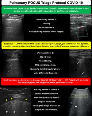 POCUS triage protocol for COVID-19.
