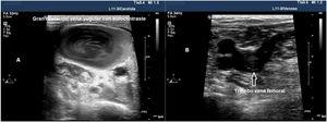 Imagen ecográfica de estado protrombótico. A) Imagen de un corte transversal de la vena yugular interna con aumento de ecogenicidad en su interior, secundario a un estado protrombótico. B) Imagen de corte transversal de la vena femoral común con un trombo no oclusivo en su interior.
