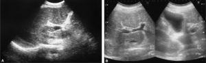 A) Ecografía abdominal con imagen compatible con una trombosis del tronco y las ramas portales. B) Ecografía abdominal donde se observa una permeabilidad del tronco y las ramas portales tras el tratamiento anticoagulante.