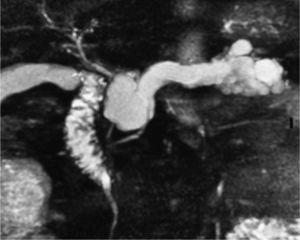 Imagen realizada mediante colangiopancreatografía por resonancia magnética, que muestra la imagen de un tumor papilar, mucinoso e intradutal, con anormalidades pancreáticas periductales y determina su relación con el conducto pancreático principal.