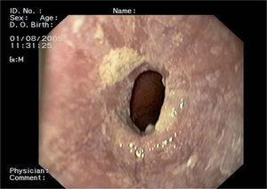 Imagen endoscópica de esófago con placas blanquecinas y estenosis esofágica.