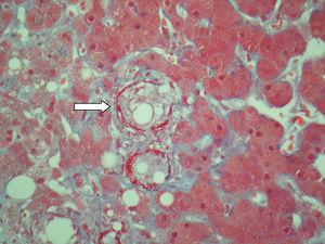 Tinción de tricrómico que demuestra el anillo de fibrina (flecha) en un doughnut granuloma (tricrómico-400×).