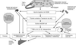 Esquema integrado del modelo patogénico de la enfermedad hepática por depósito de grasa no relacionada con el abuso de alcohol. El incremento del aporte hepático de ácidos grasos no esterificados como consecuencia de la lipólisis mantenida del tejido adiposo visceral induce estrés oxidativo, liberación de catepsina B lisosomal y estrés del retículo endoplásmico en el hepatocito. Esta situación inicia la lipoperoxidación de las membranas y activa la cascada de señalización mediada por el factor nuclear κβ, lo que se traduce en la transcripción de citoquinas, como el TNF-α y la IL-6, que son determinantes en los mecanismos de resistencia a la insulina, la apoptosis, la inflamación y la fibrosis. Tanto los macrófagos del tejido adiposo como las células de Kupffer del hígado pueden también producir TNF-α tras la estimulación por toxinas bacterianas y otras sustancias procedentes del intestino. Finalmente, desde el tejido adiposo visceral el aumento de la secreción de leptina y otras adipoquinas, así como la disminución de adiponectina, contribuyen al daño hepático característico de la enfermedad hepática por depósito de grasa no relacionada con el abuso de alcohol.