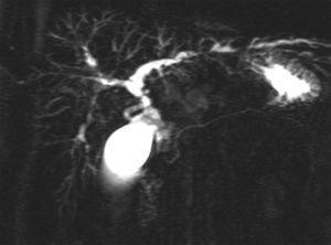 Colangiorresonancia de una colangitis esclerosante primaria. Zonas con estenosis y zonas con dilatación de las vías biliares intrahepáticas.