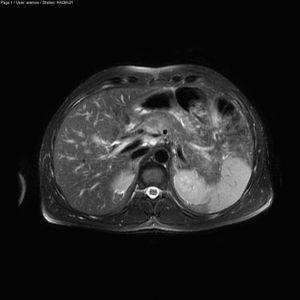 RMN páncreas.
