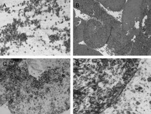 A) Frotis formados por abundante celularidad, de aspecto linfoide, de talla grande, con atípias nucleares; B) Bloque celular; C) Inmunohistoquímica positiva para CD-20; D) Imnunohistoquímica positiva para CD-79.
