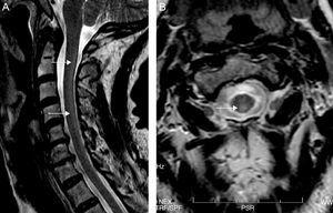 Sagittal (A) and axial (B) T2-weighted cervical MRI. Hyperintense image in the posterior half of the cervical cord from C2-C7 (arrows).