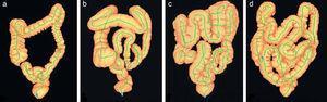 Diferencias anatómicas del colon mediante reconstrucción 3D con tomografía computarizada que muestra diversos grados de complejidad. (Fuente: Khashab et al.11)