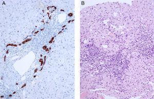 Biopsia hepática. A) Se muestra espacio porta con proliferación de ductos biliares en la placa limitante mediante inmunohistoquímica con citoqueratina 7 (×20). B) Lesión a nivel portal y periportal con hepatitis de la interfase con infiltrado linfoplasmocitario y necrosis erosiva moderada (HE, ×20).