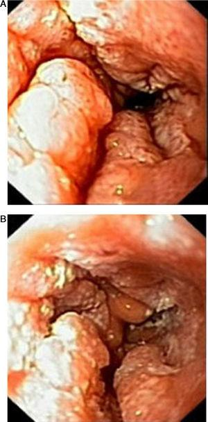 (A and B) Findings on first endoscopy: in between 26 and 34cm from dental arcade, mucosal folds are thickened and verrucous, protruding into the esophageal lúmen covered with white plaques.