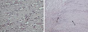 Izquierda: grupo de eosinófilos (flecha 1) infiltrando las capas del intestino delgado (>40 eosinófilos/campo). Derecha: eosinófilos que infiltran capa muscular (flecha 2) y llegan hasta la capa subserosa (flecha 3) del intestino delgado.