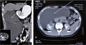 En la imagen TC se observa una gran lesión quística que desplaza el resto de estructuras intraabdominales.