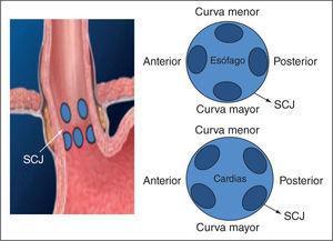Ligadura con bandas elásticas para el tratamiento de la enfermedad por reflujo gastroesofágico (ERGE). La figura muestra las zonas donde se realiza la ligadura, que corresponden a los 4 cuadrantes por encima y por debajo de la unión escamocolumnar. Imágenes cedidas por el Dr. William Kessler. SCJ: unión escamoso-columnar.