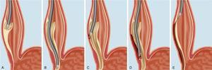 Miotomía peroral esofágica (POEM) para el tratamiento de la acalasia. El procedimiento consiste en la sección de la mucosa esofágica a nivel de esófago medio (A), la disección de un túnel submucoso que se extiende hasta 3cm por debajo de la unión gastroesofágica (B), la miotomía de la musculatura circular esofágica mediante bisturí endoscópico (C y D) y el cierre de la incisión esofágica mediante clips (E). Reproducida de Lee et al. Clin Endosc. 2012;45:4-10 (bajo licencia de CreativeCommons para uso no comercial).