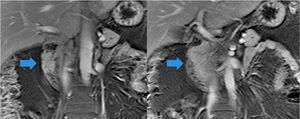 Imágenes coronales potenciadas T1 con saturación grasa y contraste (gadolinio) en las que se pone en evidencia el tejido pancreático a ambos lados de la luz duodenal.