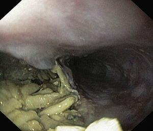 A 5cm wide esophageal perforation with a large amount of food in the mediastinum.