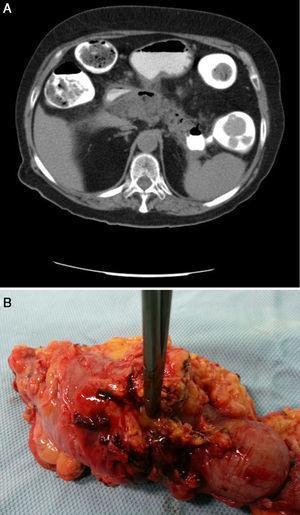 A) Fístula pancreático-colónica hacia colon descendente proximal (confirmación). B) Pieza quirúrgica.