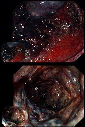 Case 4 proctosigmoidoscopy showing dark blue friable rectal mucosa.