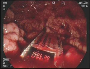 Blíster en cámara gástrica con restos hemáticos.
