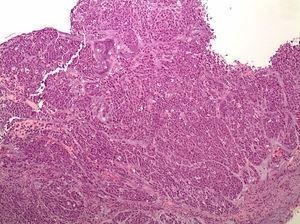 Cáncer gástrico difuso. Focos tumorales múltiples, con células en anillo de sello, propagados a través de toda la mucosa gástrica. (Foto cedida por Miriam Cuatrecasas).