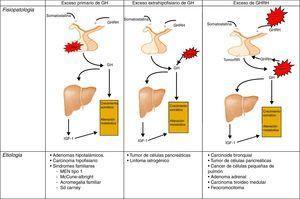 Diferentes orígenes de la hipersecreción de GH. Tomada y modificada de Rúa et al.21.