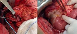 A) Resultado tras realización de la duodenectomía parcial. B) Reconstrucción del tránsito intestinal mediante anastomosis duodeno-yeyunal término-terminal y colocación de placa de Tachosil®.