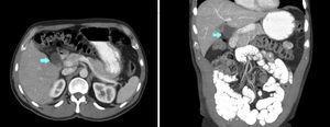 Tomografía computarizada que muestra el QCII.