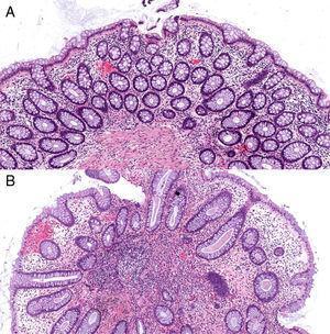 Tinción hematoxilina-eosina x 100 aumentos. 2.A: mucosa de intestino grueso con la arquitectura conservada, criptas revestidas por células caliciformes y escaso infiltrado inflamatorio linfocitario de carácter inespecífico en la lámina propia. 2.B: formación polipoide con epitelio colónico distorsionado mostrando algunas criptas levemente dilatadas y otras ramificadas, rodeadas por lámina propia inflamatoria.