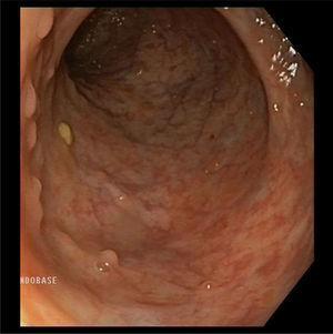 Endoscopia de control con patrón mucoso preservado sin datos de actividad inflamatoria (Mayo 0).
