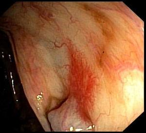 Colonoscopy showing typical findings of portal hypertensive colopathy: erythema and angiectasia.