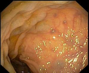 Colonoscopy showing typical findings of portal hypertensive colopathy: edema and varices.