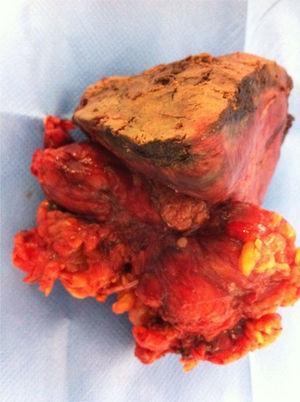 Pieza quirúrgica que incluye vesícula biliar y tejido linfograso, así como segmento hepático afectado.