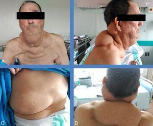 A-D) Diferentes vistas del paciente, donde se aprecian los lipomas con especial énfasis, pero también en tórax (C).