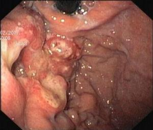 Upper digestive endoscopy: on the gastric side of the cardia, an irregular, friable and ulcerated vegetative lesion occupying one-third of the circumference of the lumen.