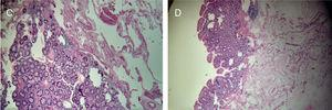 Histological finding of the polypoid-shape angiodysplasia: vascular ectasia with thin walls in the submucosal layer. Mucosal layer without atypia.