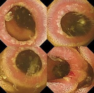 Imágenes de la cápsula endoscópica a su paso por el yeyuno en las que se visualizan múltiples anillos fibrosos ulcerados en su borde, algunos de ellos con restos de sangre fresca. Los anillos estenosan la luz permitiendo el paso de la cápsula endoscópica.