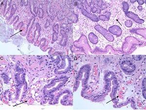 Imagen histológica de la GHP. Tinción realizada con hematoxilina-eosina. A y B. La flechas indican: capilares congestivos y dilatados a 200 aumentos. C y D. Las flechas indican: capilares congestivos y dilatados a 400 aumentos.