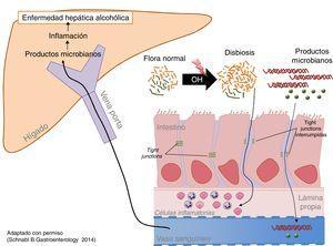 Efecto del microbioma en la enfermedad hepática alcohólica. OH: etanol.