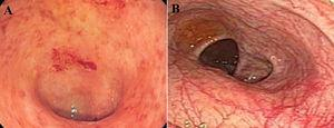 Colonoscopy finding of 43-year-old woman with presentation of dysentery which was resulted in patchy erythema.