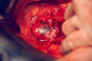 Laparotomía. Masa tumoral bien encapsulada que engloba al uréter izquierdo.