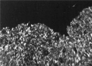 Microscopia electrónica. Afectación vaginal de carcinoma in situ escamoso.