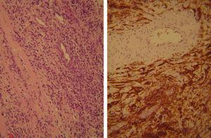 Anatomía patológica: linfoma difuso. En la imagen de la izquierda tinción hematoxilina-eosina (H/E) a un aumento 20×. La izquierda muestra positividad para CD20 (marcador B).